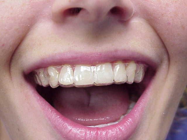 Retainers | Riviera Orthodontics